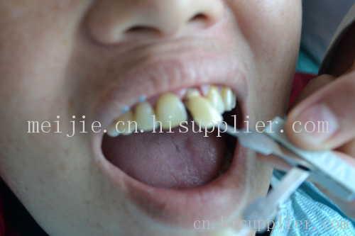 南宁种植牙齿多少钱