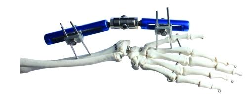 骨科外固定支架