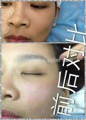郑州孕睫术代理价格