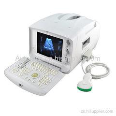 物美价廉的全数字便携式探头自动识别医疗设备超声扫描仪