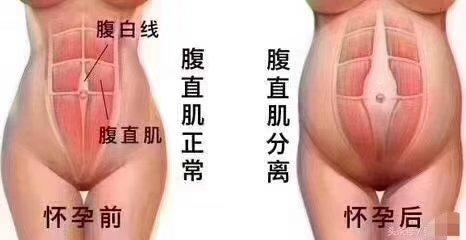 海南产后恢复 腹直肌分离修复