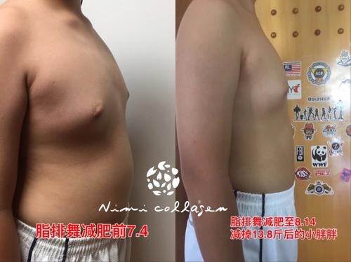 日弥NIMI脂排舞减肥真的有效果吗?会不会反弹?