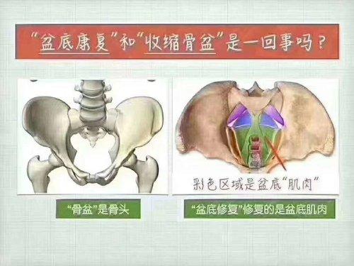 海口产后恢复骨盆肌修复价格