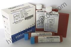 脂蛋白磷脂酶A2测定试剂盒 Lp-pLA2
